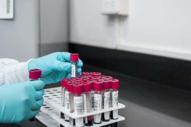 El cáncer de piel aumenta el riesgo de desarrollar otros tumores