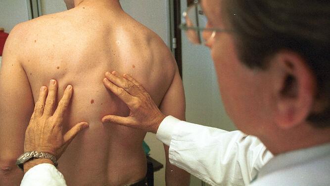 El confinamiento puede haber reducido la supervivencia de las personas con cáncer de piel