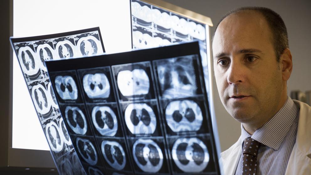 La inmunoterapia mejora la curación del peor cáncer de mama