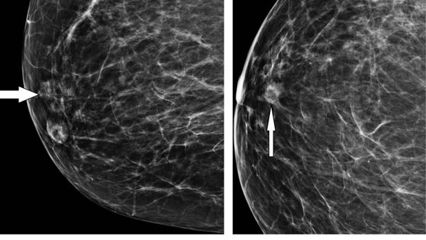 Los robots pueden detectar el cáncer de mama con la misma certeza que los radiólogos más expertos