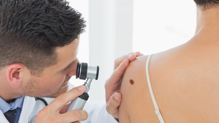Primer análisis de sangre capaz de detectar melanomas