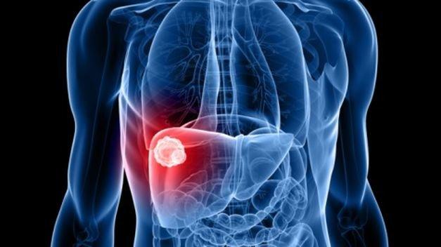 El diagnóstico precoz del cáncer de hígado consigue una supervivencia del 70% a 5 años
